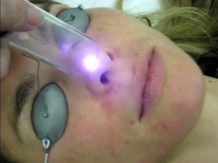 Laser Courses in Houston